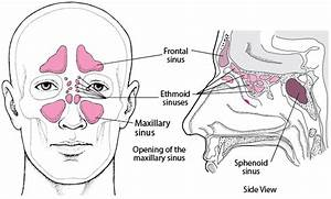 Sinusitis - Ear  Nose  And Throat Disorders