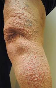Chronic Unilateral Eruption Of Painful  Erythematous