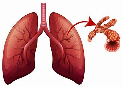 Lungs Illustration Vector Clipart Magnified