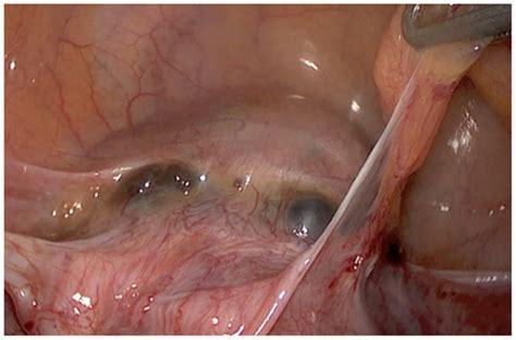 scar tissue from c section frontiers laparoscopic treatment of placenta percreta