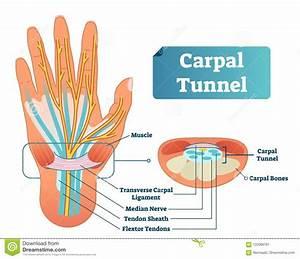 Carpal Tunnel Vector Illustration Scheme  Medical Labeled