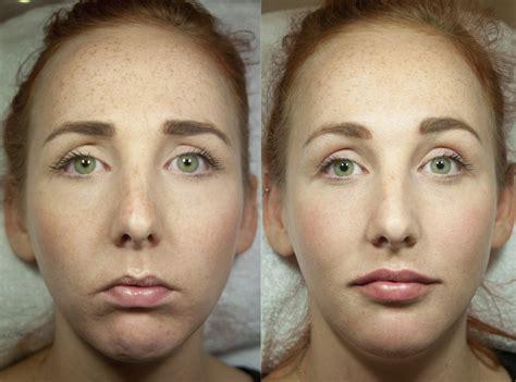 Mesotherapie gezicht