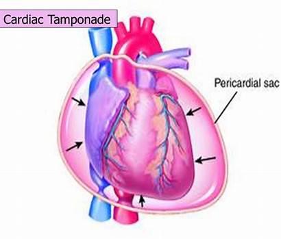 Tamponade Mechanism System Cardiac Vascular Regulatory Cardio