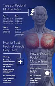 Torn Pectoral Muscle Recovery Time  How To Speed Healing And Prevent R