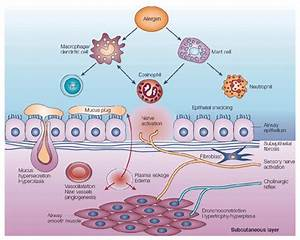 7  Schematic Representation Of Asthma Pathophysiology