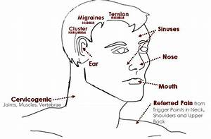What Type Of Headache Do You Get Clear Chiropractic In Redmond