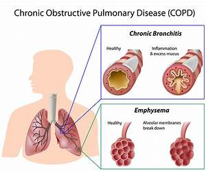 bronchitis chest pain relief