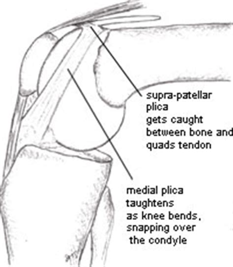 What is the Plica Syndrome?   KNEEguru