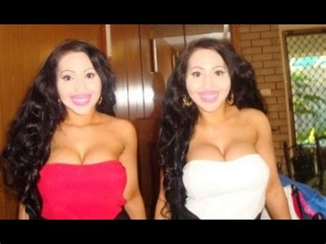 lucy and anna decinque before identical twins share everything from boyfriend to plastic