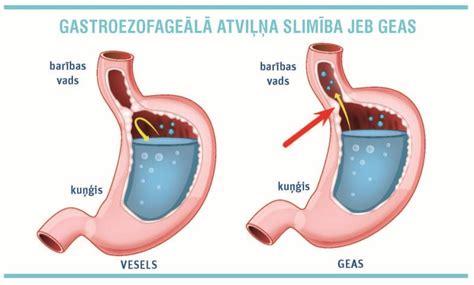 Kuņģa skābes paisums un bēgums. Kas ir gastroezofageālā ...