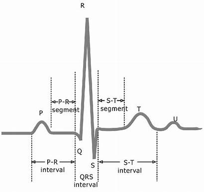 Ecg Ekg Signal Normal Tracing Cycle Electrocardiogram