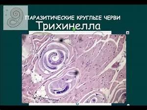 Симптомы простатита у мужчин препараты схема