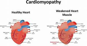Dog Heart Diagram Simple Heart Disease Diagram • Mifinder.co