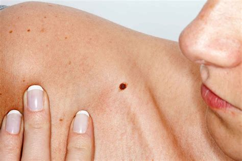 Skin Cancer Symptoms How To Check For Moles Readers Digest