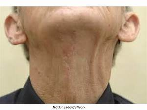 Direct Excision Neck Lift Before And After