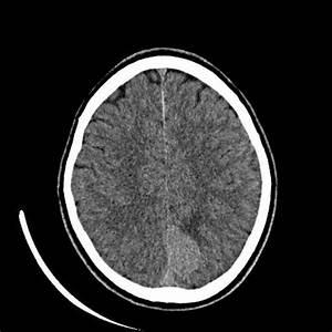 Parafalcine (parasagittal) meningioma | Radiology Case ...