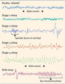 Sleep Stages and Brain Waves