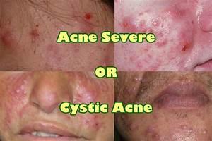 Back Acne Diagram Clogged Pores Diagram ~ Elsavadorla