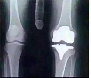 Broken knee - Funny Pictures - Funny Photos - Funny Images ...