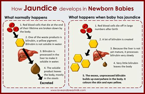 How Jaundice Develops In Newborn Babies It All Makes So