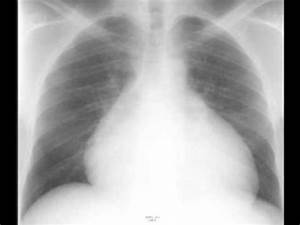 Pericardial Effusion on Chest X ray - YouTube