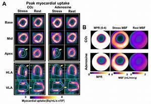 Multimedia Pc Test 2018 : pet mr shows arterial co2 as potent vasodilator for ~ Jslefanu.com Haus und Dekorationen
