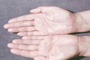 Хлорофиллипт и псориаз