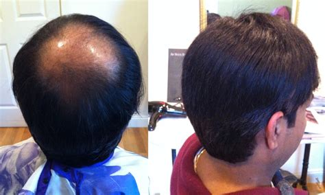 hair loss solution  men boston beauty medspa hair