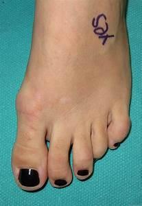 Hammer Toe Syndrome; Claw Toe; Hammer Toe; Mallet Toe