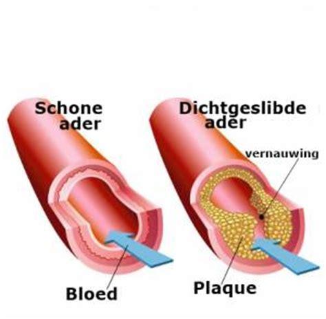 dieet bij cholesterol
