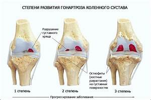 Какие лекарства от остеохондроза коленного сустава