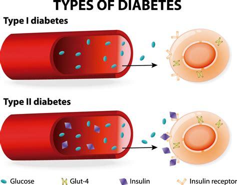 alianza la diabetes tipos de diabetes