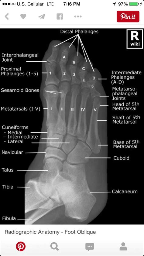 radiology anatomy medical ray imaging rad nursing tech ankle student apom foot students technology radiologic dog coding scotty lateral youve