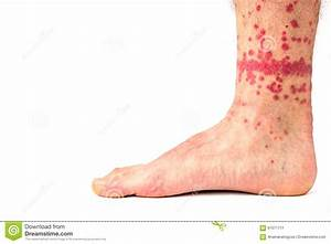 Flea Bites on Human Leg stock image. Image of insect ...