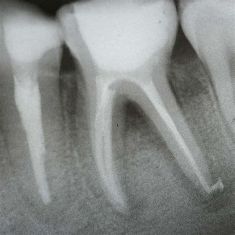 root canal treatment cost procedure teeth ray dental canals build endodontic faq therapy dentist helps problem options myth