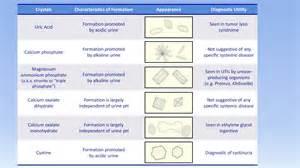 Interpretation of the Urinalysis (Part 3) - Microscopy and Summary ... Urinalysis