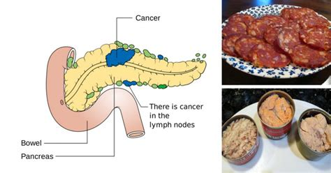 cancer linked foods    put   mouth