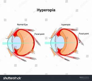 Eyes Vision  Eye Vision Diagram