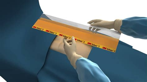 3m Surgical Drapes - surgical patient drape 3m ioban drape how to apply