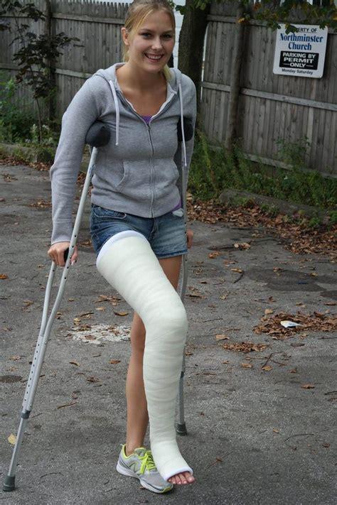 11033727 1639322426335563 3169875589791721355 o things to wear leg cast it cast leg cast