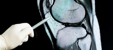 Early Results Showing Positive Outcome for Knee Cartilage ...
