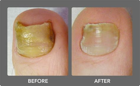 Fungal Infection On Toes Skin Image
