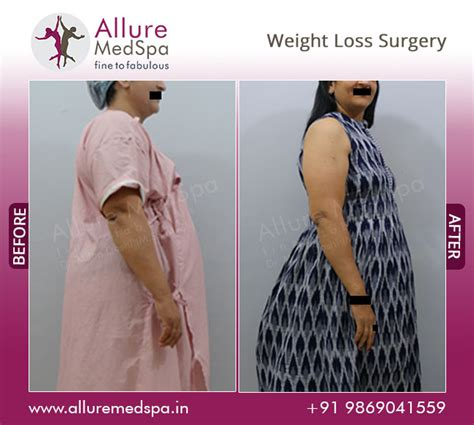 Weight Loss Surgery  Information, Doctors, Cost, Pictures. Gangrene Signs. Characteristics Signs. Radiological Signs. Staph Infection Signs Of Stroke. Gemeni Signs Of Stroke. Coronary Artery Signs Of Stroke. Wound Healing Signs. Dementia Friendly Signs Of Stroke
