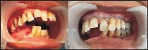 Prosthodontic Rehabilitation Of Hemimandibulectomy