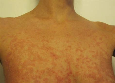 Heat Rash From Tanning Bed by Sweat Rash On The Chest This Got A Sweat Rash On