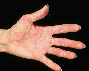 Peeling Skin Conditions