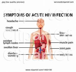 Clipart Of A Medical Diagram Of Symptoms Of Acute Hiv