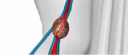 Popliteal Aneurysm Artery Vein Treatment Dilation