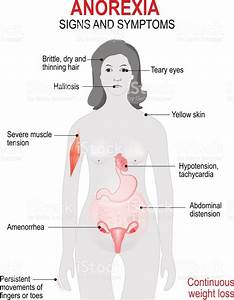 Signs Symptoms of Anorexia Nervosa - Iantorno Anorexic ...