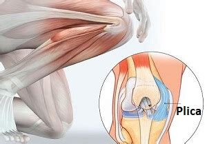 Medial Knee Pain - Common Causes of Inner Knee Pain